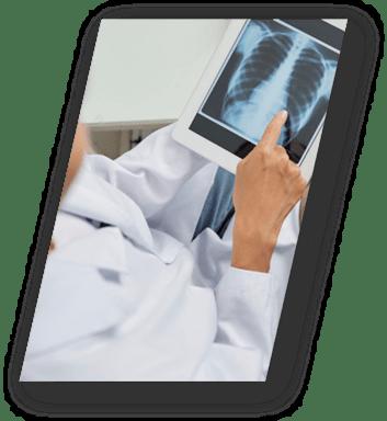 Telerad Diagnóstico por imágenes a distancia