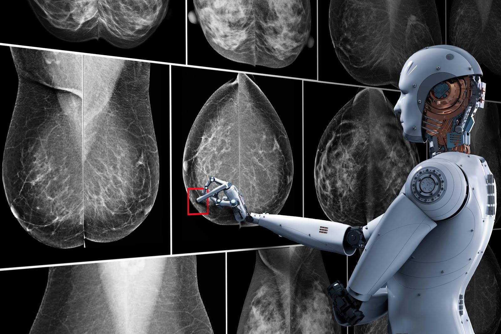 telerad_inteligenciaartificial_mamografia